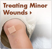 Treating Minor Wounds